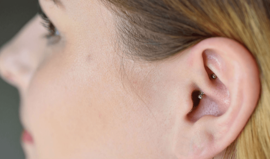 daith-piercing-for-anxiety