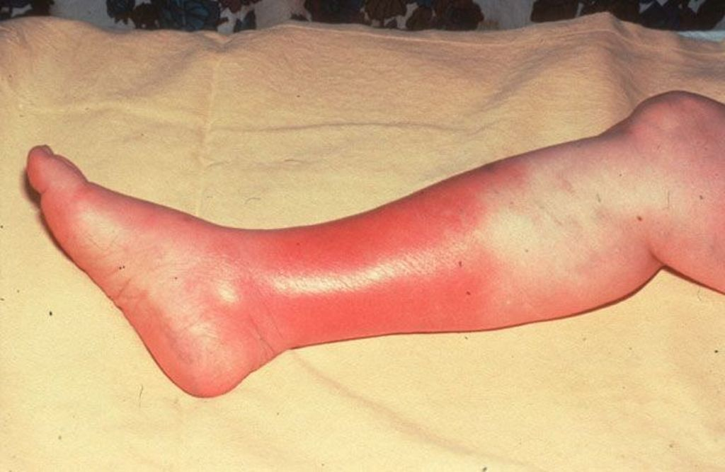 cellulitis-treatment